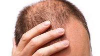 کچلی مادرزادی کم پشت شدن موی سر درمان قطعي ريزش موي سر درمان ریزش مو جلوگیری از ریزش مو علت ریزش مو تقویت پیاز موی سر عوامل ریزش مو سر تقویت موی سر مردان راههای جلوگیری از ریزش مو درمان ریزش شدید مو