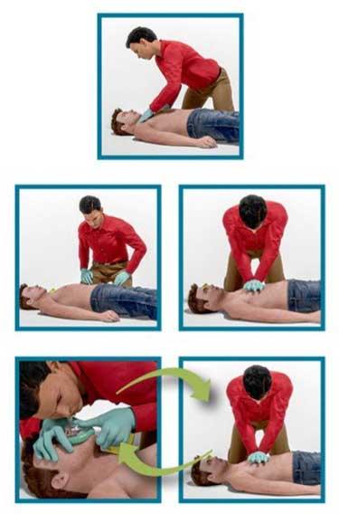 آموزش تصویری قدم به قدم تنفس مصنوعی علائمی که نشان میدهد مصدوم یا بیمار به تنفس مصنوعی احتیاج دارد