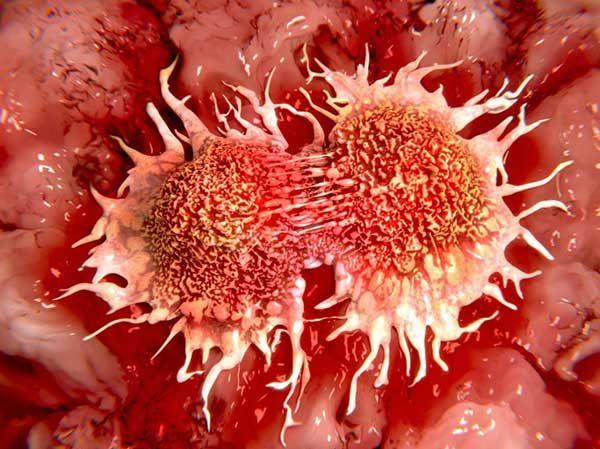 سلول های سرطانی - چطور سرطان گسترش می یابد؟